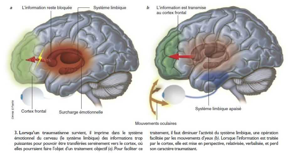Emdr - Principes neurophysiologiques